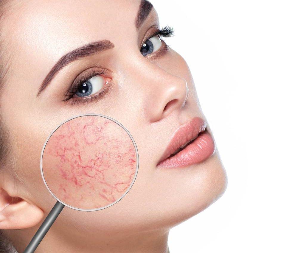 curare-capillari-rotti-couperose-terapie
