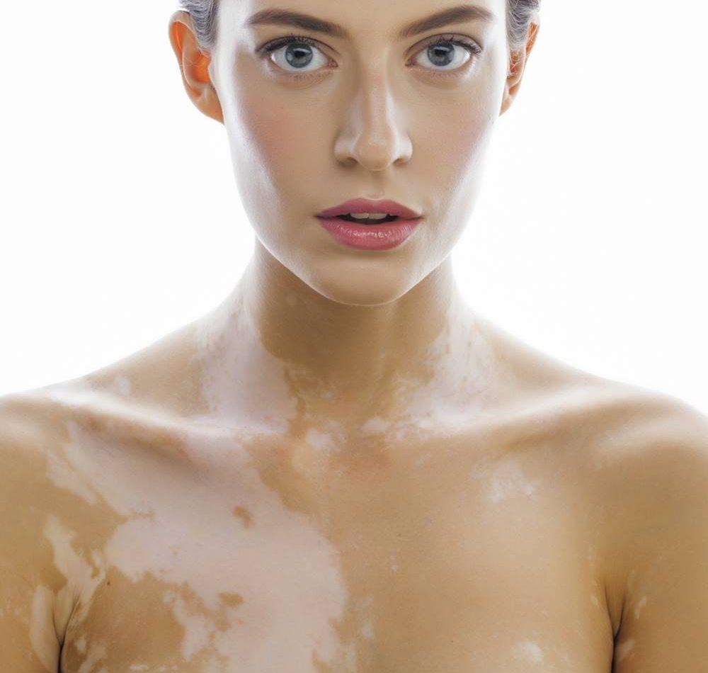 curare-malattie-pelle-terapie-dermatologia