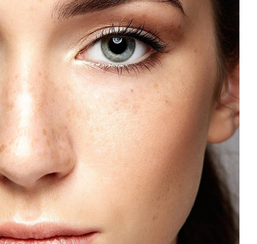 eliminare-macchie-viso-corpo-terapie