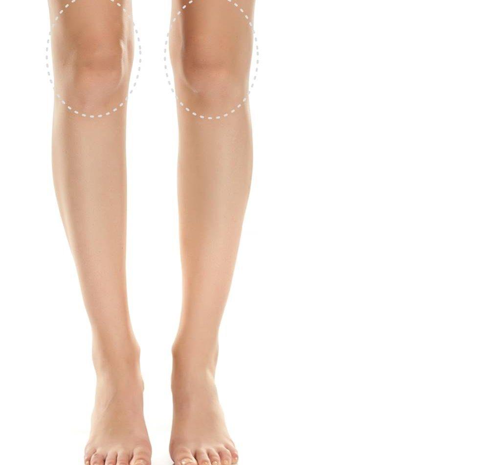 inestetismi ginocchia come eliminarli con chirurgia e medicina estetica