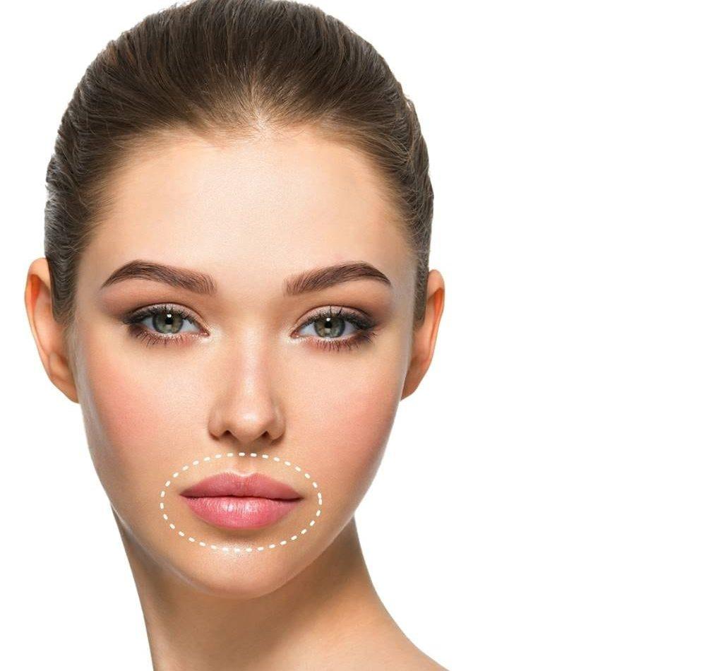 labbra come correggerle con medicina e chirurgia estetica