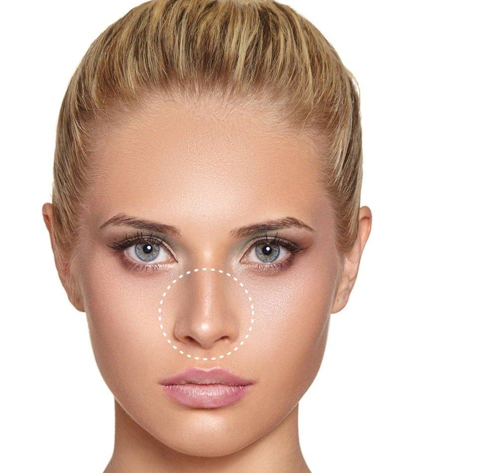 difetti del naso: come eliminarli con chirurgia e medicina estetica