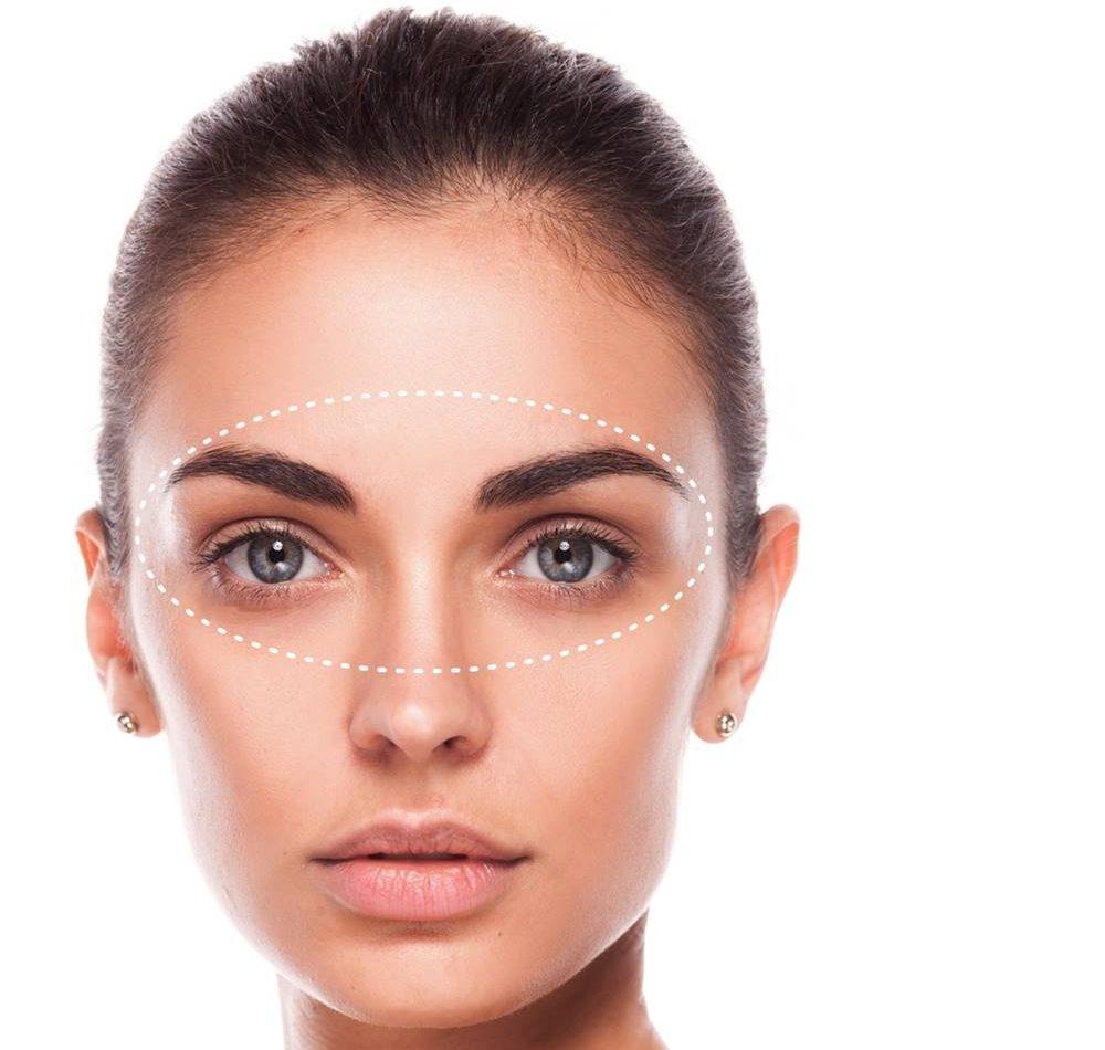 inestetismi occhi e palpebre: i migliori trattamenti di medicina e chirurgia estetica
