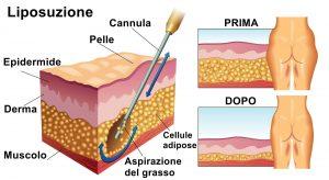 Liposuzione delle cosce - eliminare il grasso localizzato - infografica Londeiclinic