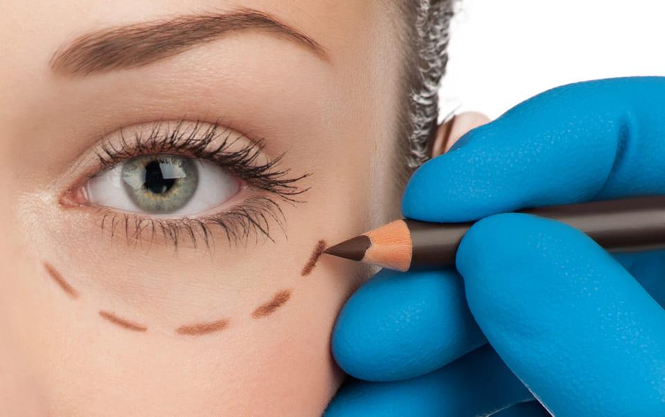 blefaroplastica-chirurgia-estetica-palpebre