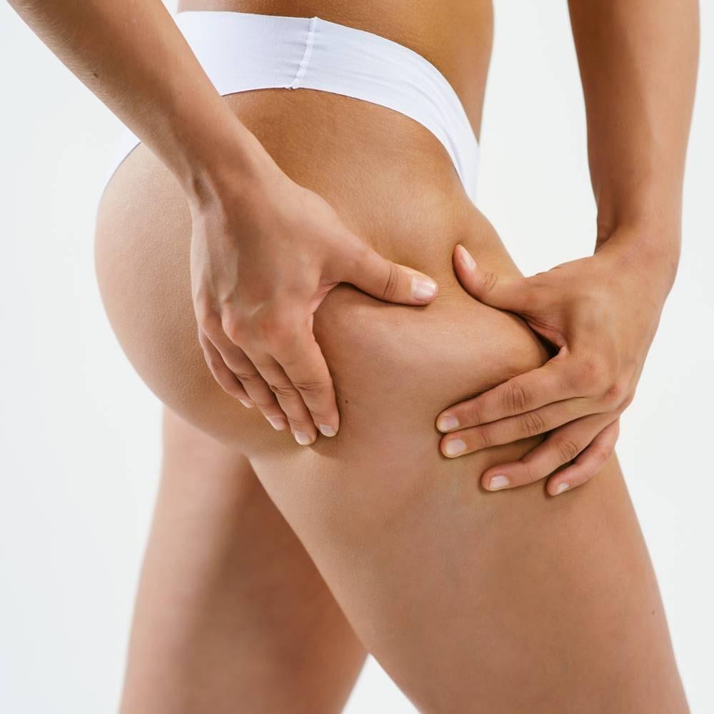 liposuzione cosce eliminare i cuscinetti di grasso rimodellare le gambe