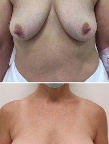 Mastopessi con protesi foto prima e dopo