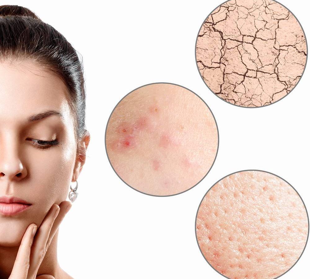 Dermatologia medica e dermatologia chirurgica padova londeiclinic
