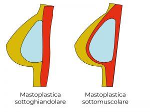mastoplastica sottomuscolare