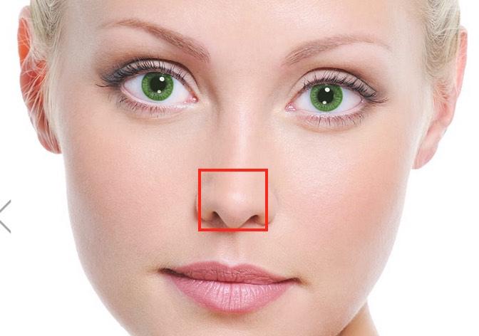 rinoplastica punta naso